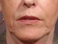 Skin Enhancement