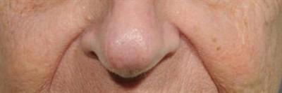 Facial Reconstruction